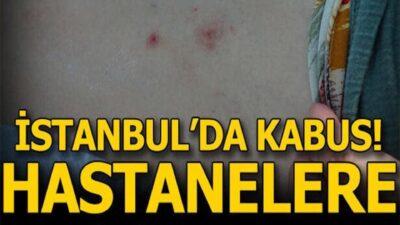 İstanbul'da sivrisinek kabusu! Hastanelere koştular